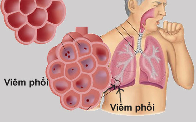 Dấu hiệu bị viêm phổi